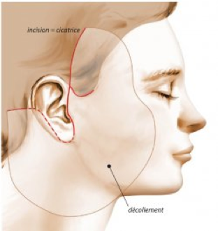 Emory chirurgie plastique faciale
